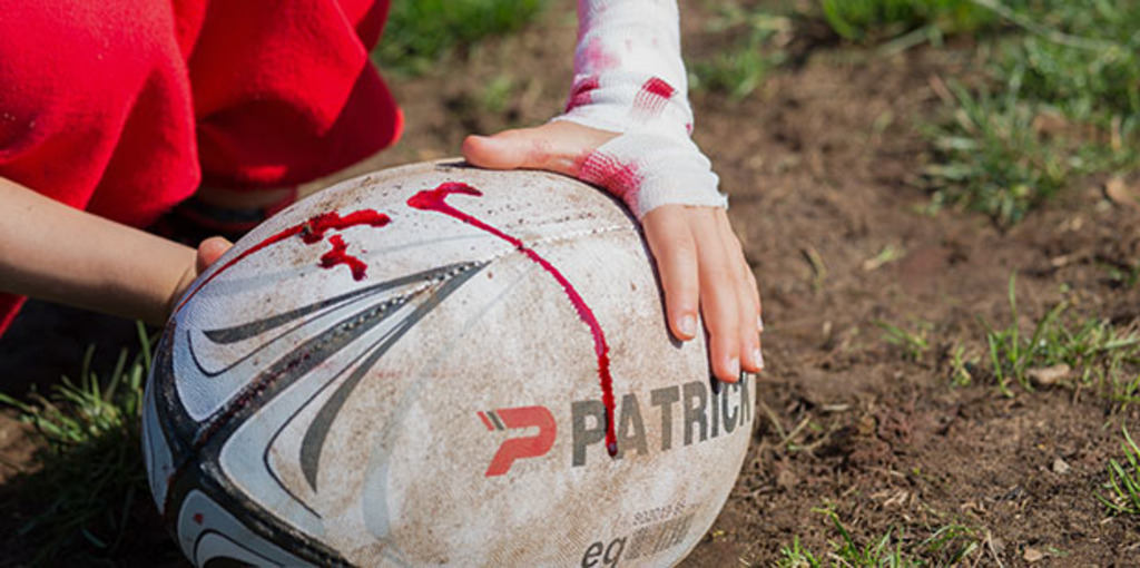 Exposing the brutality of rugby injuries in children and adults.