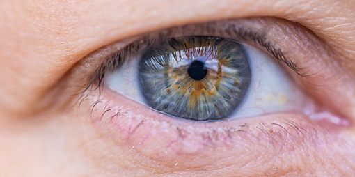 An Eye for Food – how nutrition can support our eyes. - thumbnail version